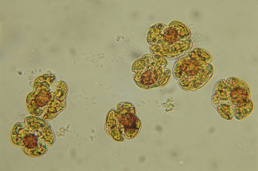 Karenia brevis cells. Credit: Mote Marine Laboratory